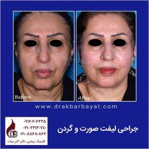 کادر جراحی لیفت صورت و گردن لمون | بهترین جراح لیفت صورت در تهران