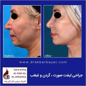جراحی لیفت صورت و گردن | کادر جراحی لیفت صورت و گردن لمون | تصویر جراحی لیفت صورت
