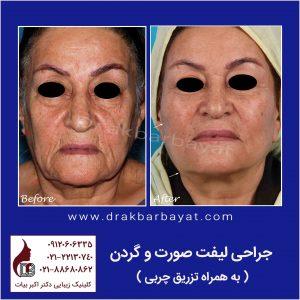 جراحی لیفت صورت | نمونه تصویر جراحی لیفت صورت | کادر جراحی لیفت صورت و گردن لمون