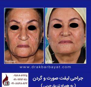جراحی لیفت صورت | نمونه تصویر جراحی لیفت صورت | بهترین جراح لیفت صورت در تهران