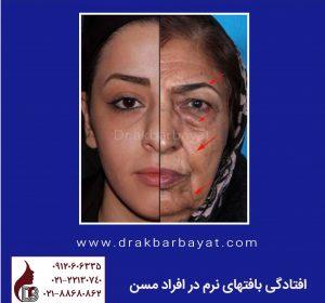 لیفت صورت | جوانسازی صورت | لیفتینگ صورت