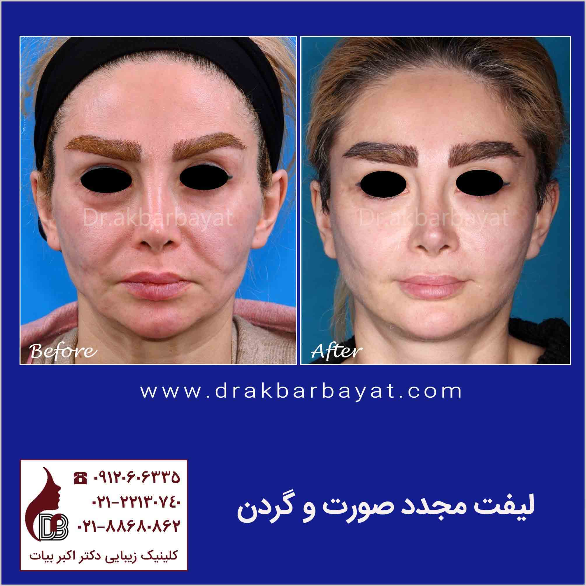 جراحی مجدد لیفت صورت | جراحی مجدد لیفتینگ صورت | بهترین جراح لیفت صورت در تهران