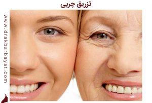 تزریق چربی | جوانسازی صورت | جوان سازی صورت