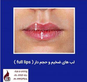 جراحی لب | جراحی برجسته کردن لب | برجسته کردن لب ها | جراحی زیبایی لب