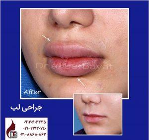 جراحی لب | لیفت لب | جراحی زیبایی لب دکتر اکبر بیات