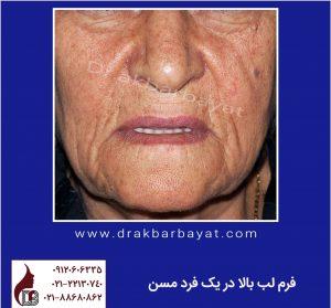 لیفت لب | جراحی زیبایی لب | بهترین جراح لب تهران | لیفت سانترال لب