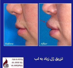 لب های شتری | تزریق زیاد ژل به لب | تزریق ژل لب | جراحی زیبایی لب | فرم دهی لب با جراحی | بهترین جراح زیبایی لب تهران