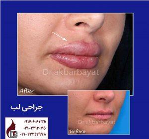 تصویر جراحی لب | جراحی پلاستیک لب | بهترین جراح زیبایی لب در تهران