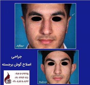 تغییر فرم گوش با جراحی   بهترین جراح زیبایی گوش در تهران