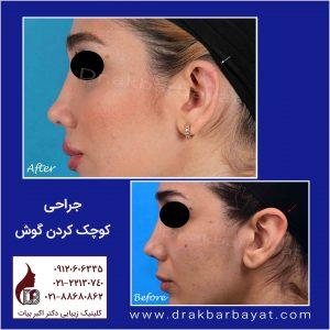 تغییر سایز گوش با جراحی | کوچک کردن گوش با جراحی | جراحی کوچک کردن گوش