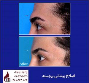 جراحی پیشانی برجسته زنانه سازی صورت مجموعه زیبایی دکتر اکبر بیات