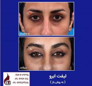 تصویر لیفت ابرو   جراحی لیفت ابرو   جراحی صورت دکتر اکبر بیات