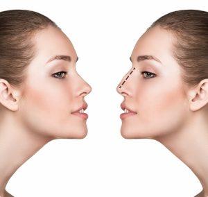 انتخاب مدل بینی | جراحی زیبایی بینی | دکتر اکبر بیات