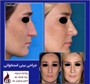 جراحی بینی استخوانی  دکتر اکبر بیات
