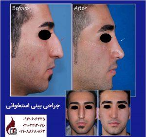 جراحی زیبایی بینی | راینوپلاستی