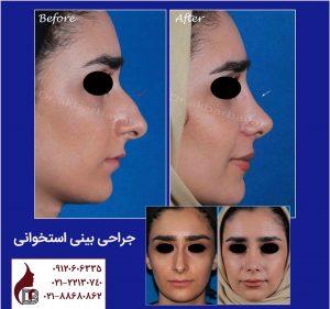 جراحی بینی استخوانی | راینوپلاستی