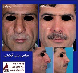 جراحی بینی گوشتی  دکتر اکبر بیات