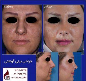 جراحی بینی گوشتی |دکتر اکبر بیات