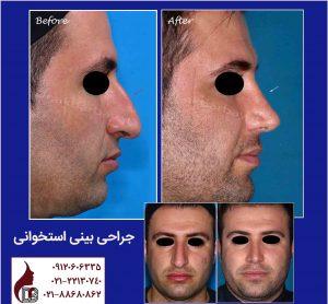 جراحی بینی استخوانی |دکتر اکبر بیات