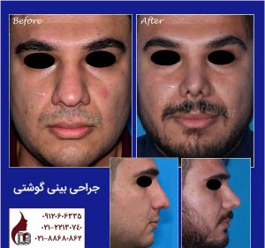 جراحی بینی گوشتی|دکتر اکبر بیات