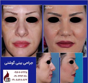 جراحی بینی گوشتی دکتر اکبر بیات بهترین جراح بینی تهران