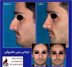عمل جراحی بینی | جراحی بینی|جراحی بینی غضروفی