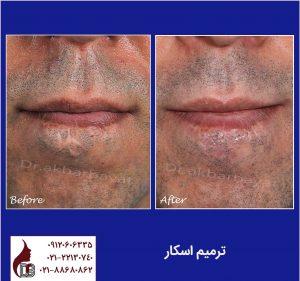 ترمیم اسکار|بهترین جراح زیبایی صورت|دکتر اکبر بیات تهران