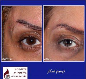ترمیم اسکار صورت |جراحی زیبایی صورت|دکتر اکبر بیات
